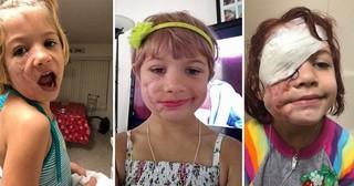 Bị chó cắn đến rách mặt, cô bé 6 tuổi mỗi ngày đều chụp ảnh selfie