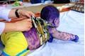 Mẹ không tiêm phòng trước sinh, hàng loạt trẻ phải nhập viện vì thủy đậu