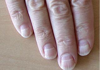 Nhìn móng tay, đoán biết mình có bị bệnh về gan hay không?