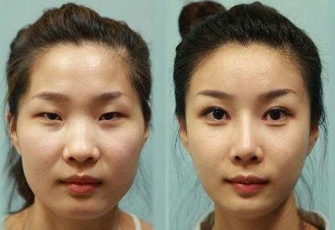 Phẫu thuật thẩm mỹ cải thiện tình trạng mắt xếch