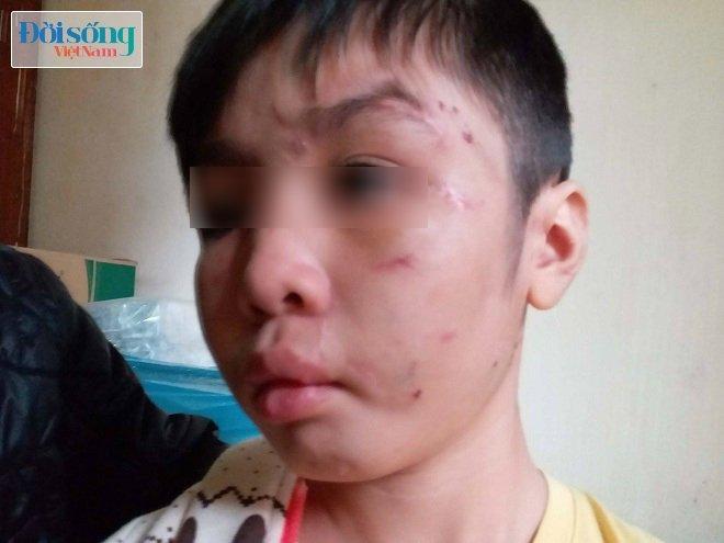 Cháu bé 10 tuổi bị bố bạo hành dã man