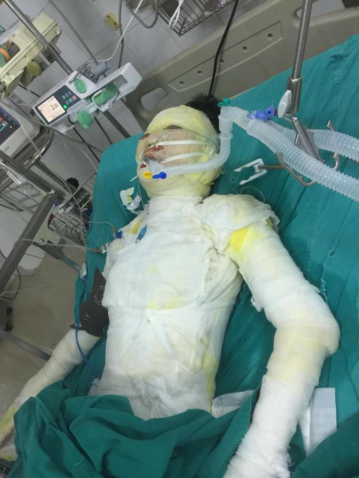 Thiếu nữ bị tẩm xăng đốt: Gia đình sẽ đưa nạn nhân về vào ngày 2mai