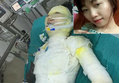 Thiếu nữ bị bạn trai tẩm xăng đốt ở Vĩnh Phúc: Bỏng 92% cơ thể, nạn nhân có tiên lượng xấu