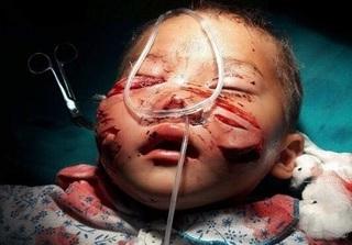 Lào Cai: Sang nhà chú chơi, bé trai 29 tháng tuổi bị chó cắn rách mặt