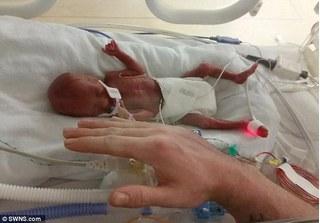 Sức sống diệu kì sau những ca phẫu thuật liên miên của bé sinh non 23 tuần tuổi