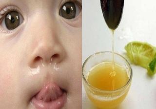 Bài thuốc đơn giản giúp bé yêu dứt cơn sổ mũi chỉ trong 3 ngày