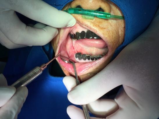cấy ghép răng cho cụ bà 91 tuổi ở Vĩnh Phúc