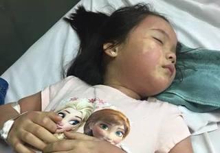 Bé gái bị tiêu chảy, nôn trớ và phải nhập viện khẩn cấp nghi ngộ độc trà sữa