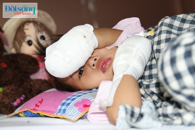 Cắt bỏ tứ chi để cứu lấy tính mạng bé gái 3 tuổi mắc nhiễm khuẩn huyết14