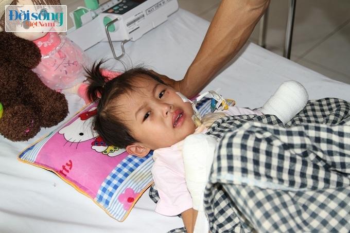 Cắt bỏ tứ chi để cứu lấy tính mạng bé gái 3 tuổi mắc nhiễm khuẩn huyết3