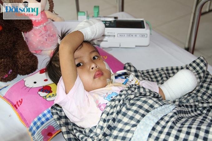 Cắt bỏ tứ chi để cứu lấy tính mạng bé gái 3 tuổi mắc nhiễm khuẩn huyết