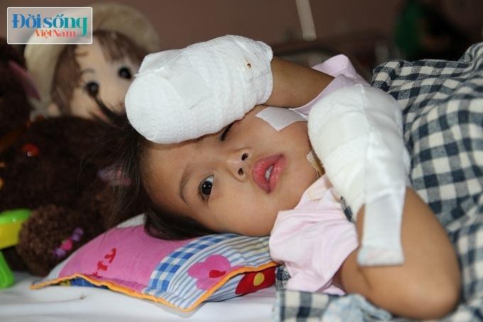 Cắt bỏ tứ chi để cứu lấy tính mạng bé gái 3 tuổi mắc nhiễm khuẩn huyết2