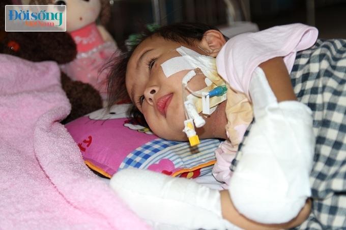 Cắt bỏ tứ chi để cứu lấy tính mạng bé gái 3 tuổi mắc nhiễm khuẩn huyết6