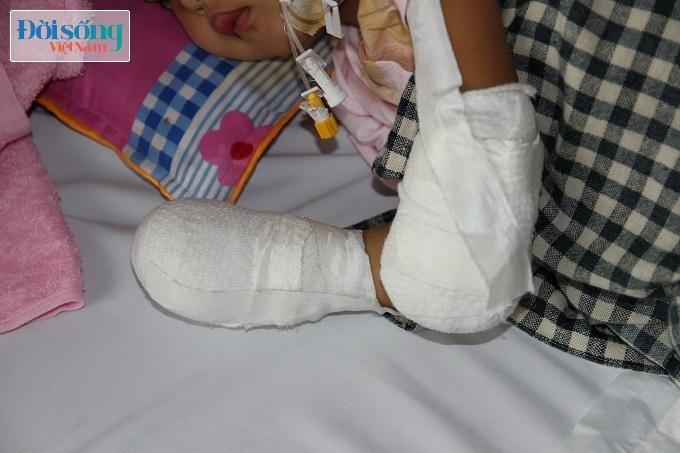 Cắt bỏ tứ chi để cứu lấy tính mạng bé gái 3 tuổi mắc nhiễm khuẩn huyết5