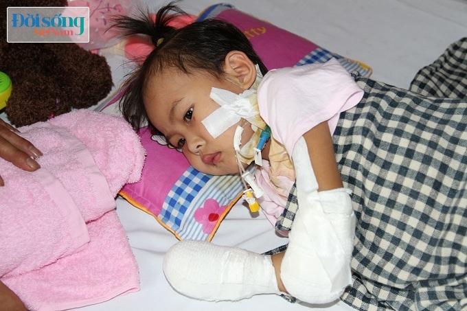 Cắt bỏ tứ chi để cứu lấy tính mạng bé gái 3 tuổi mắc nhiễm khuẩn huyết16