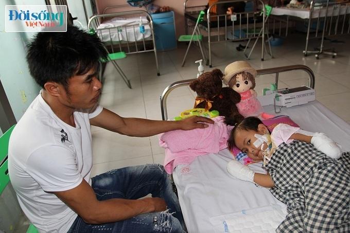 Cắt bỏ tứ chi để cứu lấy tính mạng bé gái 3 tuổi mắc nhiễm khuẩn huyết9