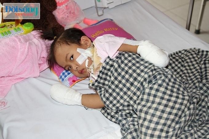 Cắt bỏ tứ chi để cứu lấy tính mạng bé gái 3 tuổi mắc nhiễm khuẩn huyết13