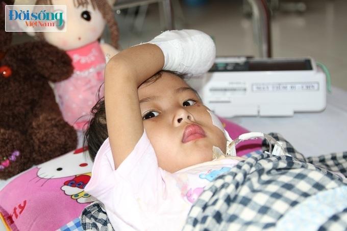 Cắt bỏ tứ chi để cứu lấy tính mạng bé gái 3 tuổi mắc nhiễm khuẩn huyết17
