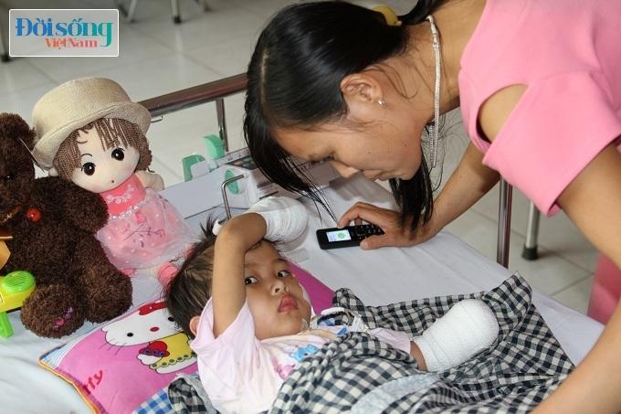 Cắt bỏ tứ chi để cứu lấy tính mạng bé gái 3 tuổi mắc nhiễm khuẩn huyết10