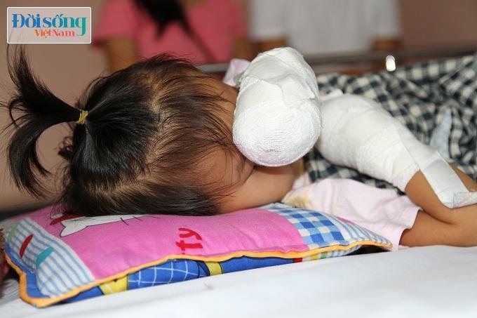 Cắt bỏ tứ chi để cứu lấy tính mạng bé gái 3 tuổi mắc nhiễm khuẩn huyết4