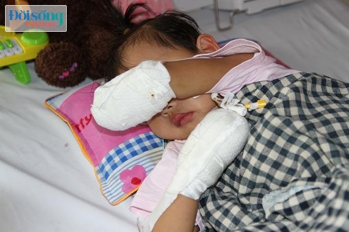 Cắt bỏ tứ chi để cứu lấy tính mạng bé gái 3 tuổi mắc nhiễm khuẩn huyết15