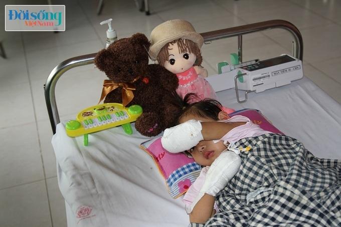 Cắt bỏ tứ chi để cứu lấy tính mạng bé gái 3 tuổi mắc nhiễm khuẩn huyết12