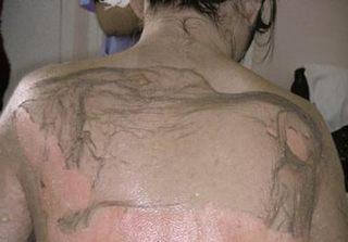 Nhập viện trong tình trạng nguy kịch do dùng thuốc nam trị đau khớp
