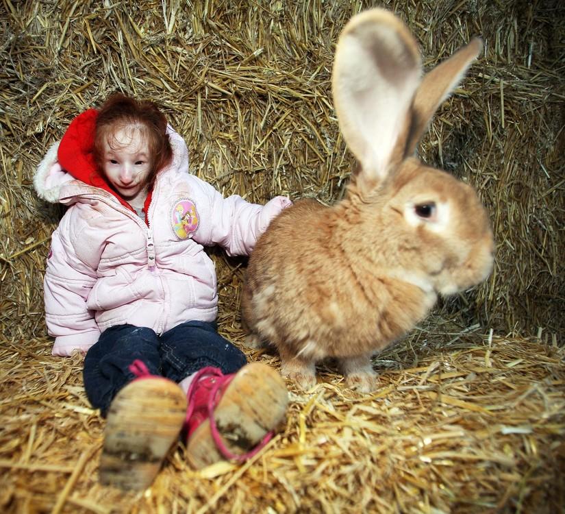 Nghị lực sống của cô bé nhỏ nhất thế giới