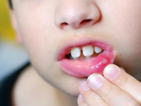 Chữa nốt nhiệt miệng ở trẻ chỉ trong 3 ngày bằng lá rau ngót