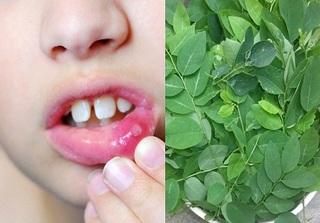 'Đánh bay' nốt nhiệt miệng ở trẻ chỉ trong 3 ngày bằng lá rau ngót