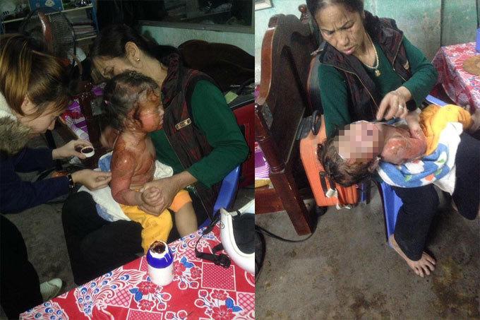 Quảng Ninh: Bé gái 26 tháng tuổi ngã vào nồi bỗng rượu nóng khi chơi với bà