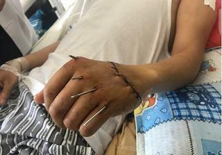 7 giờ nối liền bàn tay cho nam bệnh nhân bị chém đứt lìa