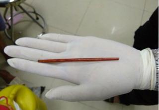 Gắp chiếc đũa dài 12 cm ra khỏi dương vật người đàn ông 42 tuổi