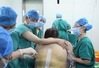 Bác sĩ 'mướt mồ hôi' cắt qua 15cm mỡ của mẹ bầu nặng 135kg để cứu thai nhi