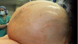 12 bác sĩ toát mồ hôi cắt khối u buồng trứng dài 1m, nặng 60 cân