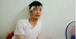 Chia sẻ đầy bất ngờ của tài xế taxi Mai Linh bị 'choảng' gạch vào đầu