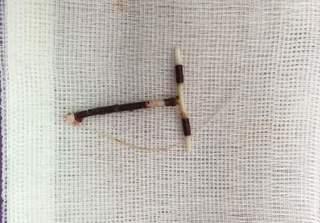 Phẫu thuật nội soi gây mê lấy vòng tránh thai lạc trong ổ bụng bệnh nhân
