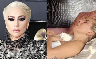 Lady Gaga: Bệnh tật đau đớn ở tuổi 32 và nỗi ám ảnh bị cưỡng hiếp