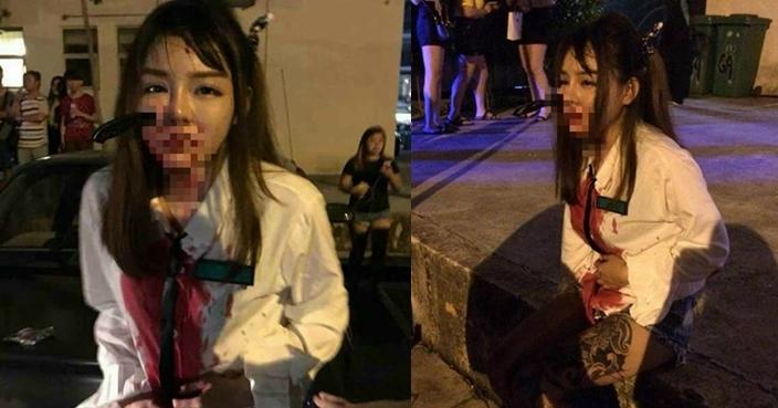 Bị đâm dao giữa mặt, cô gái vẫn bình tĩnh ngồi yên gọi cảnh sát tới