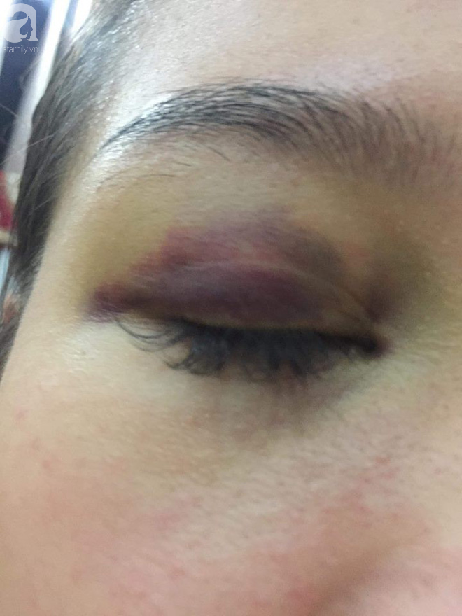 Cô gái bị bạn trai ngoại quốc đánh đập, tung clip nóng lên mạng2