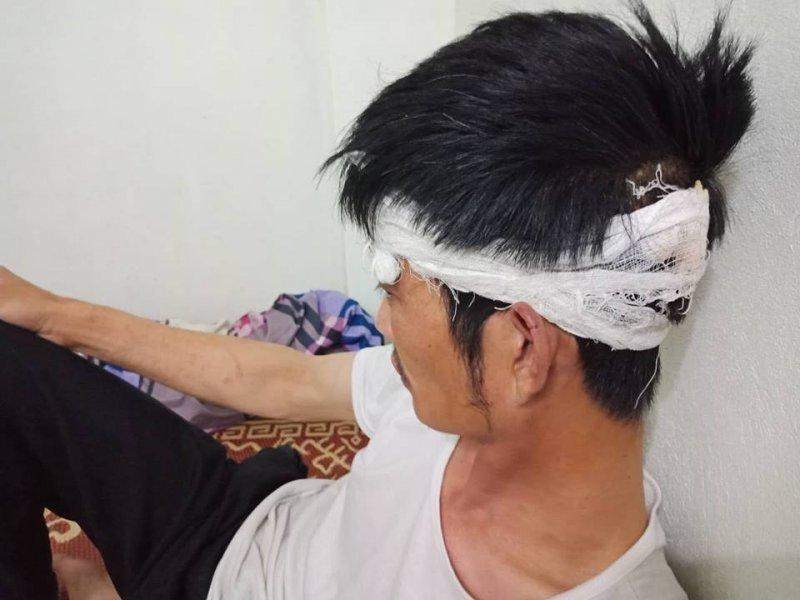 Tài xế Mercedes cầm gạch đánh tài xế taxi Mai Linh khai gì tại cơ quan công an?2