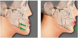 Phẫu thuật hàm hô móm kết hợp làm răng sứ