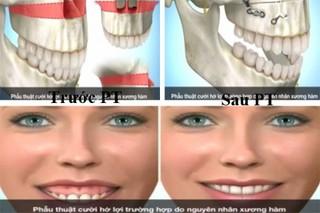 Chữa cười hở lợi có khó không?