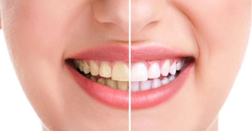 Đừng đổ nước vo gạo đi vì tác dụng làm răng trắng sáng2