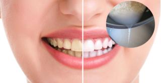 Đừng đổ nước vo gạo đi vì tác dụng làm răng trắng sáng đến không ngờ