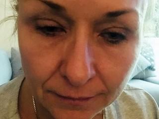 'Cái giá quá đắt' dành cho người phụ nữ 25 năm chuốt mascara không tẩy trang