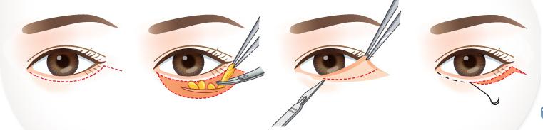Ảnh minh họa quá trình căng da thừa mí mắt kèm lấy mỡ thừa