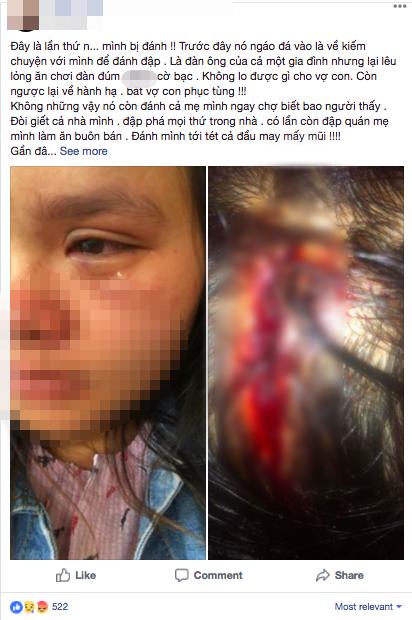 Bầu vượt mặt 9 tháng, người vợ trẻ bị chồng đánh bầm tím mắt