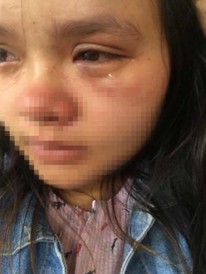 Bầu vượt mặt 9 tháng, người vợ trẻ bị chồng đánh bầm tím mắt 3