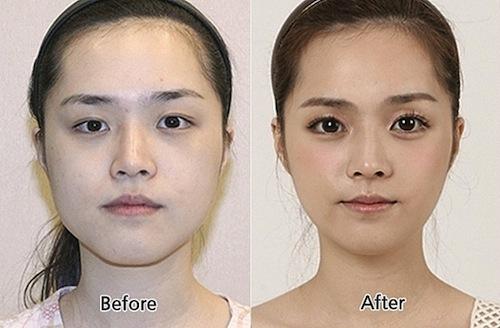 Phẫu thuật mở rộng góc mắt thêm to tròn